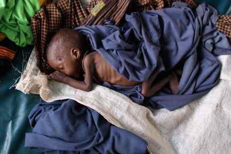 Три миллиона детей умирают ежегодно от плохого питания и недоедания. Фото: Oli Scarff/Getty Images