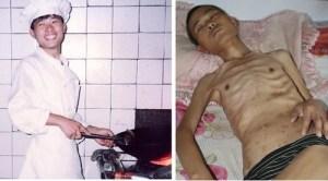 Последователь Фалуньгун Сюй Давэй до и после пыток в заключении в Китае