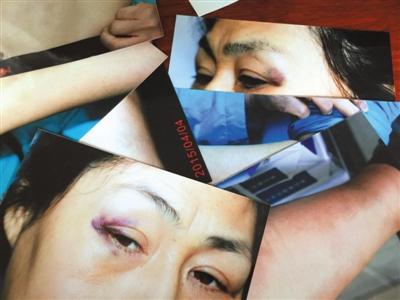 Адвокат Цуй Хуэй была ранена в районном народном суде Тунчжоу 2 апреля, на неё напали сотрудники суда. Фото: Beijing News/Chinese Human Rights Defenders