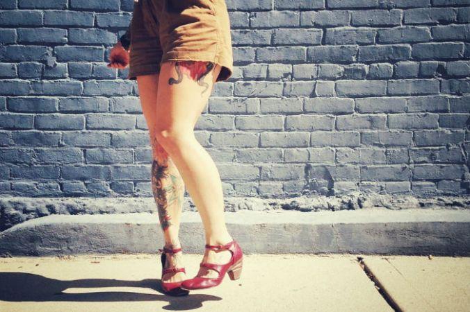 варикоз, ноги