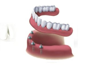 Waterloo Dentist - Erbsville Dental - Dental implant