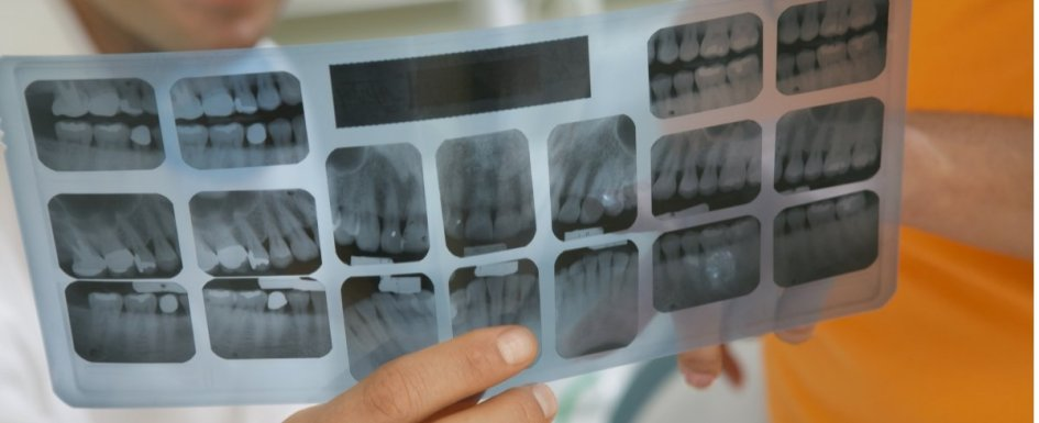 Why Your Tooth Deserves A Dental Crown