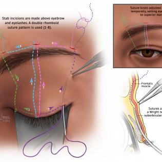 Eyelid Sling Surgery