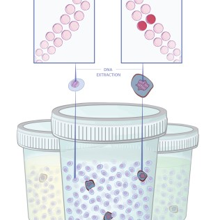 Patient Education: Cancer Gene Extraction from Patient Sample