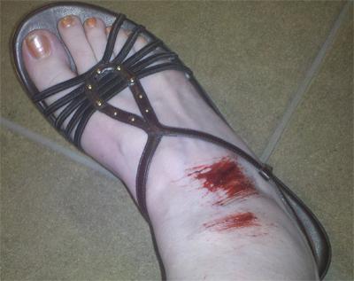 Erin's injured foot