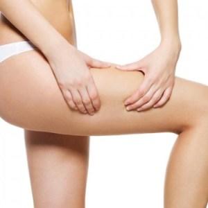 La cellulite è una malattia?