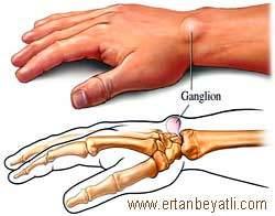 Ganglion nedir ve nasıl tedavi edilir?