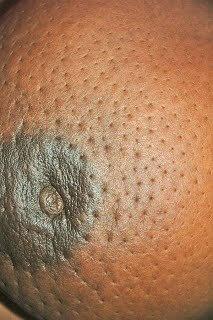 Peau dorange orange peel image - Breast Cancer