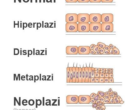 metaplazi