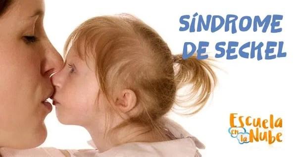 síndrome de Seckel