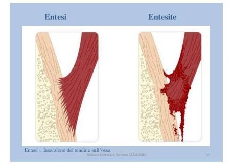 """alt=""""Espondilartrites/espondiloartropatias (artrite soronegativa)"""""""