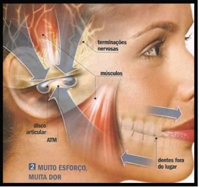 """alt=""""Espondilite Anquilosante e Tratamento Odontológico"""""""