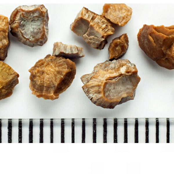 Novos Estudos – Risco aumentado de pedra nos rins em pacientes com Espondilite