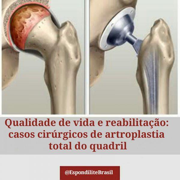 Qualidade de vida e reabilitação: casos cirúrgicos de artroplastia total