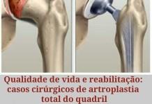 """alt=""""Qualidade de vida e reabilitação: casos cirúrgicos de artroplastia total"""""""