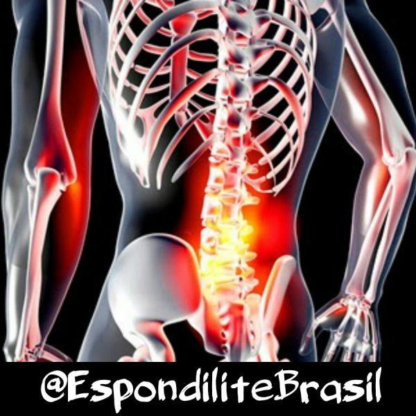 Sociedade Paranaense de Reumatologia (SPR) realiza encontro para discutir espondiloartrites