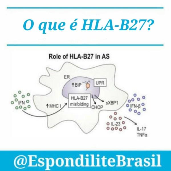 O que é o HLA-B27?