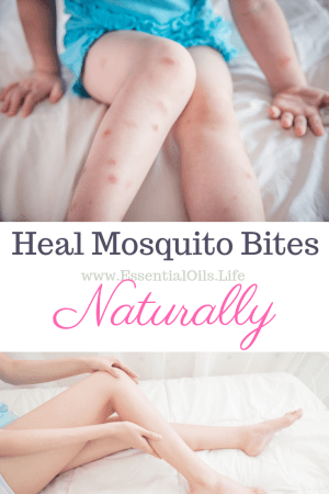 Do you have mosquito bites that swell up? Or just hate the obsessive painful itching that those little buggers cause? We found a trick that works every time to help suck out the yuck and make your bites stop itching within seconds!