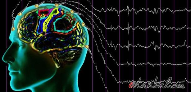 17300-epilepsi-hakkinda-bilinmesi-gerekenler