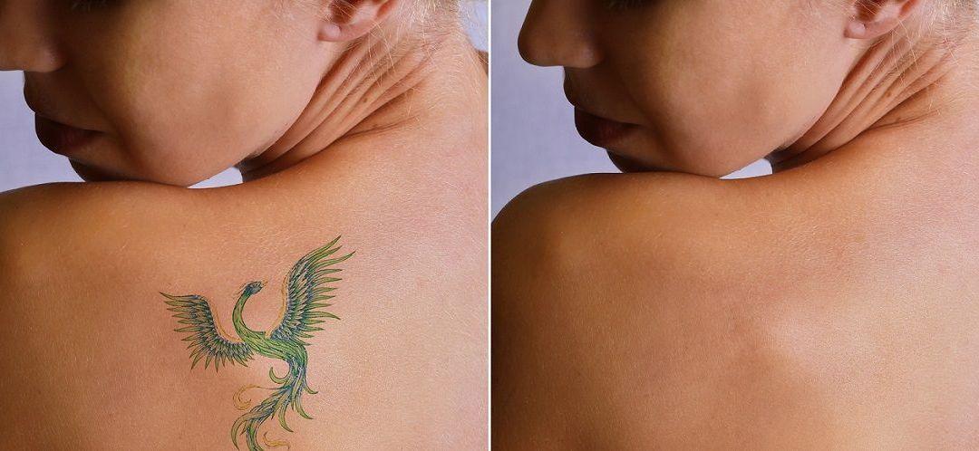 Îndepărtare tatuaje / ştergere tatuaj