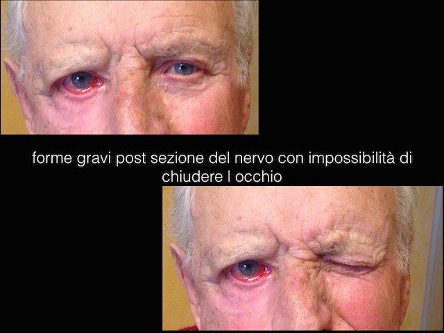 paresi faciale-caso1