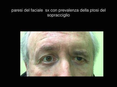paresi faciale-caso2