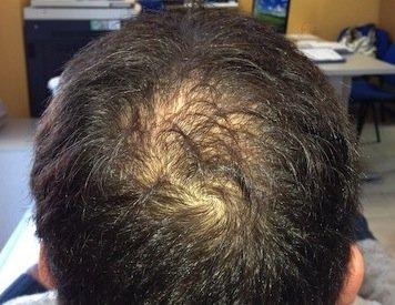 prp capelli risultati 1