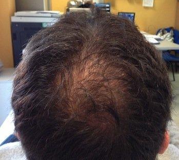 prp capelli risultati 2