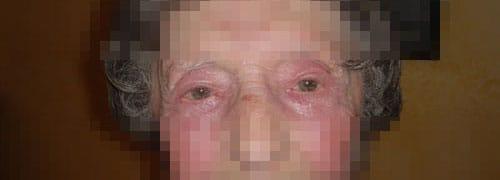 terapia fotodinamica foto prima dopo 2