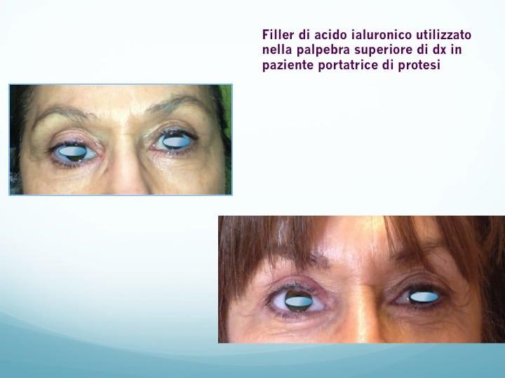 filler acido ialuronico 2