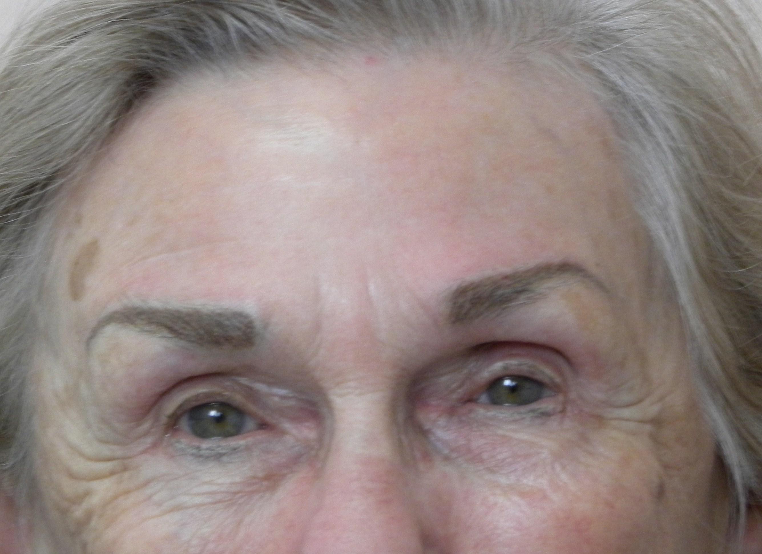 Skin Changes Older People