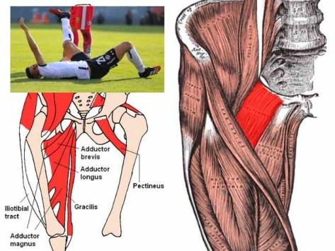 Músculo pectíneo