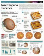 retinopatia-infografia-mini