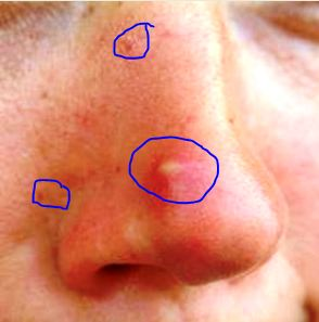 Infected pore on nose and cheeks