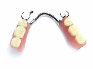 dentiera-corona-ponte