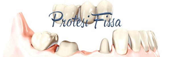 Protesi Fissa Dentalhouse