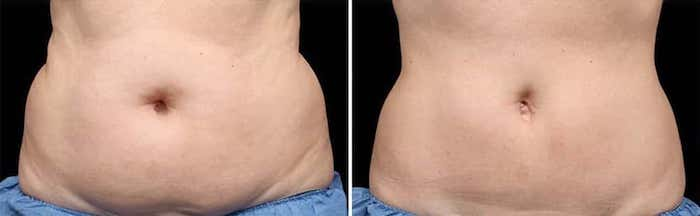 Criolipolisi – CoolSculpting 3