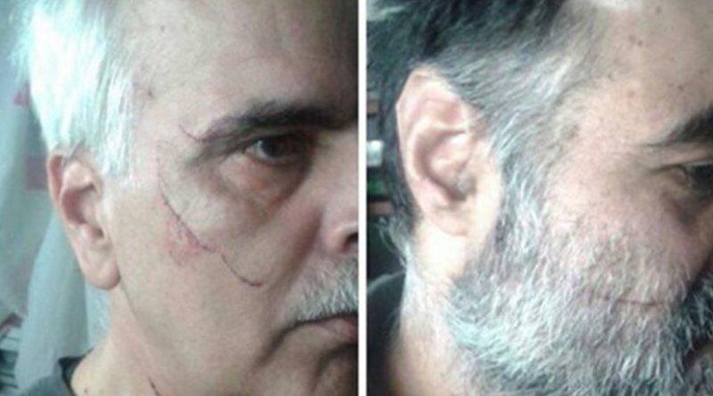 Scarred Iranian political prisoners. Photo Credit: Kaleme website.