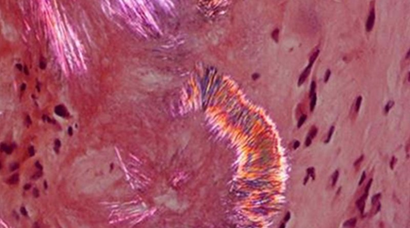 Area of a tophus where crystals appear on cellular tissue