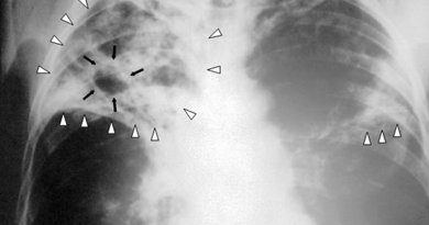 Chest X-ray of a person with advanced tuberculosis. Photo Credit: Centers for Disease Control and Prevention, Wikipedia Commons.
