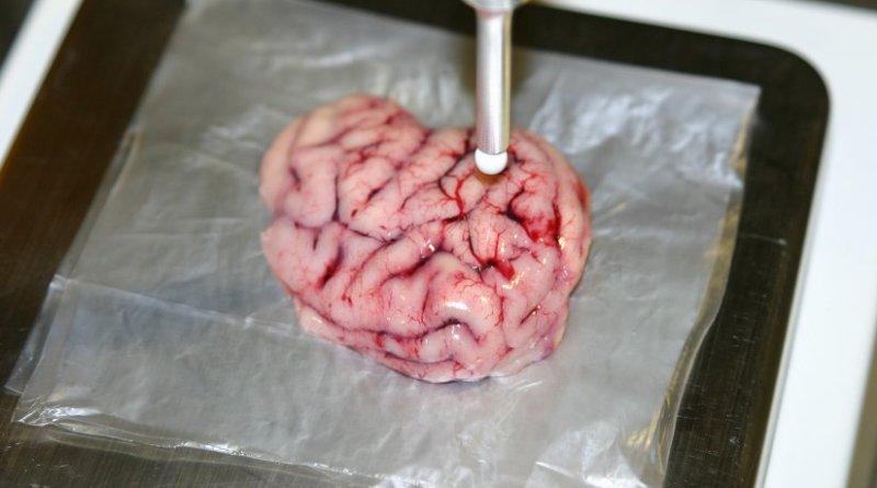 Measurement in pig's brain tissue.