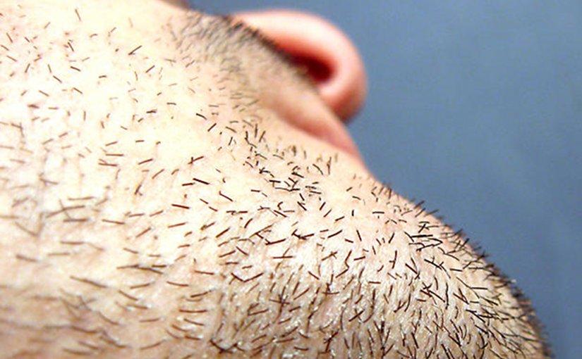 beard hair