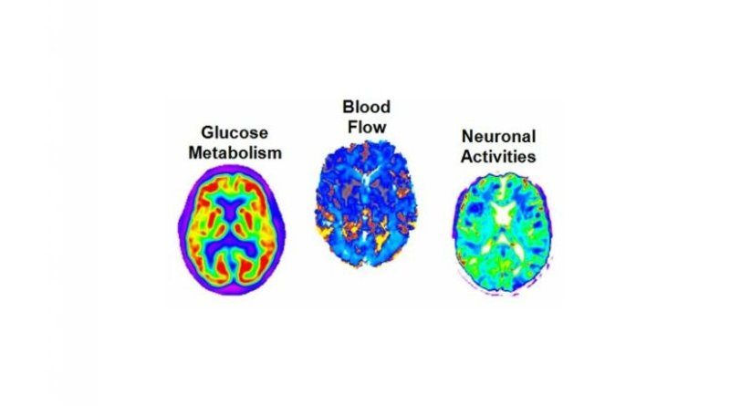 his study used multiple imaging techniques to measure amyloid concentration, glucose metabolism, cerebral blood flow, functional activity and brain atrophy in 78 regions of the brain, covering all grey matter. Credit Montreal Neurological Institute