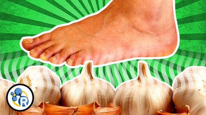 """Did you know you can """"taste"""" garlic with your feet? Credit The American Chemical Society"""