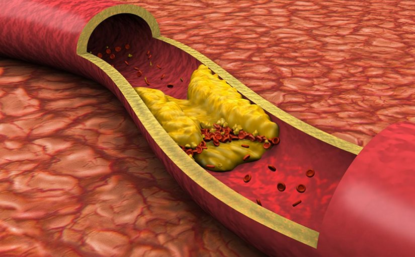 "Researchers are revisiting their views on the relative dangers soft and hard atherosclerotic plaque deposits pose to heart health. Findings of a new study by researchers at the Intermountain Medical Center Heart Institute may be a ""game-changer"" for determining who's at risk of a heart attack, they say. Credit Intermountain Medical Center"