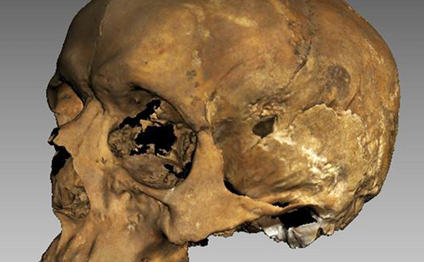 The 3d image of Richard's skull