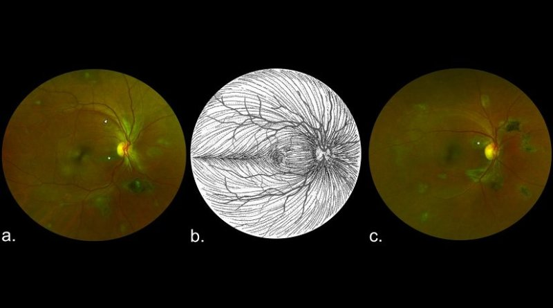 These are composite scanning laser ophthalmoscope retinal images showing type 6 Ebola peripapillary or peripheral lesions, observed following the anatomic distribution of the ganglion cell axon (retinal nerve fiber layer), in a case-control study of ocular signs in Ebola virus disease survivors, Sierra Leone, 2016. A) Example 1, right eye. B) Illustration of the ganglion cell axon anatomic distribution. Courtesy of W.L.M. Alward. C) Example 2, right eye. Asterisks indicate curvilinear lesions distinct from the retinal vasculature. White arrowhead indicates retinal nerve fiber wedge defect. Credit University of Liverpool