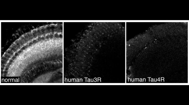 Nerve cells in normal/ healthy fly brains and in fly brains expressing the two human Tau isoforms. Credit Dr Torsten Bossing, University of Plymouth
