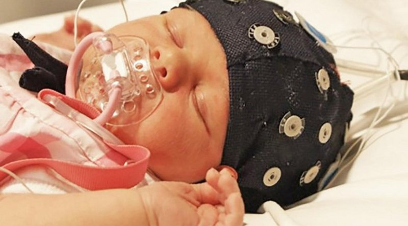 EEG monitoring combined with automatic analysis provides a practical tool for the monitoring of the neurological development of preterm infants and generates information which will help plan the best possible care for the individual child. Credit Sampsa Vanhatalo