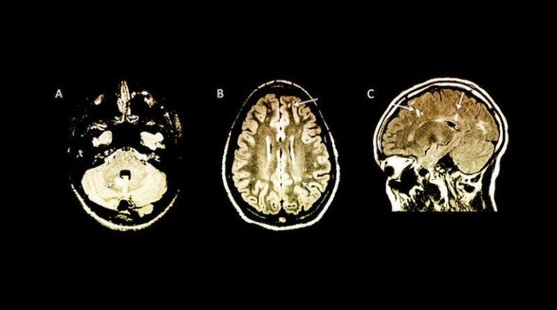 Arrows indicate abnormalities on MRI brain scans in children with no symptoms of multiple sclerosis. Credit Yale University